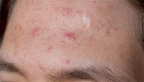 acne forehead digestion picture 17