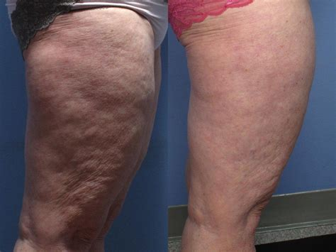 cellulite and laser picture 2