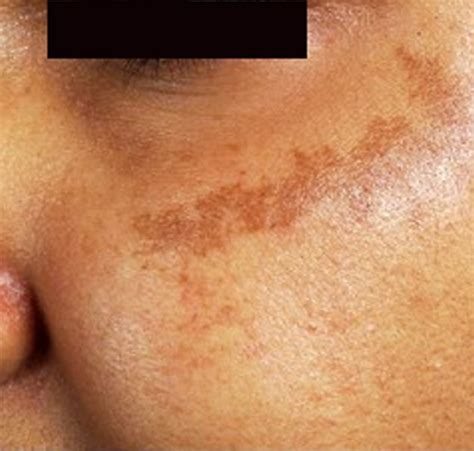 dark spots on skin picture 3