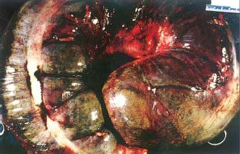 severe mega colon picture 6