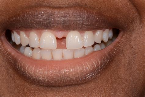 average price to close gaps in teeth picture 4