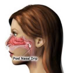 herbs that stop post nasal drip picture 3