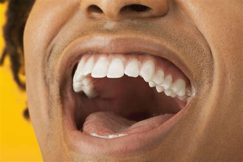 dry mouth teeth hurting metal taste picture 7