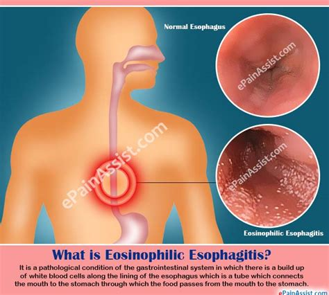 homeopathic remedies for eosinophil esophagitis picture 1