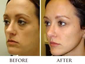 acne treatment bay area picture 15