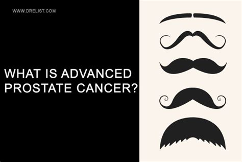 What is prostate cancer picture 17