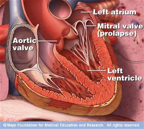 homeopathic remedy for mitral valve prolapse picture 7