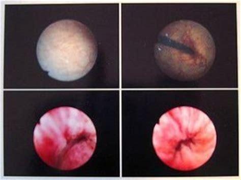 What cures trigonitus picture 19