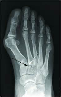 lisfranc joint picture 1