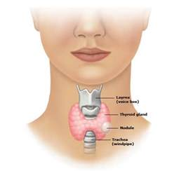 does a fna of thyroid gland hurt picture 13