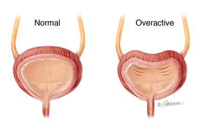 always feeling like bladder is full picture 4