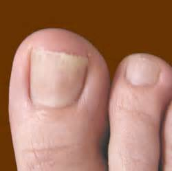 signs of toenail fungus picture 5