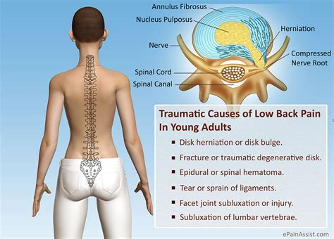 suppressing causes severe back pain picture 3