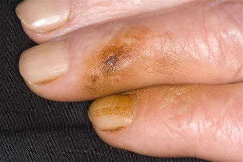 can nicotine cause yellowed skin picture 3