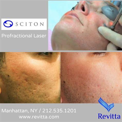 fractil skin procedure picture 13