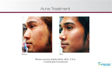 slush treatment for acne picture 2