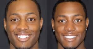 african american skin microdermabrasion picture 11