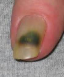 fungas on nails in blood stream picture 13