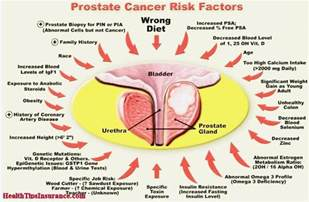 Prostate cancer life insurance picture 1