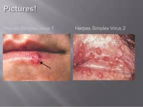 gestation time herpes picture 3