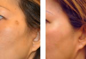 san diego skin laser treatment picture 7