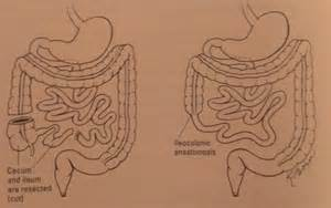 large and small bowel picture 3
