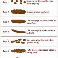 type of thyroid disease wikipedia free encyclopedia picture 19