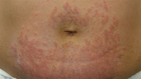 maculopapular skin rash picture 17