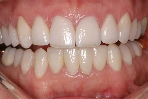 healthy teeth pictures picture 13