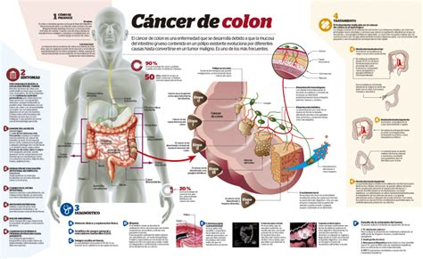 c ancer de colon picture 1