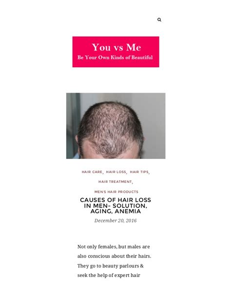 anemia causing hair loss picture 5