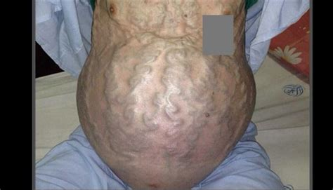 distended gall bladder picture 9