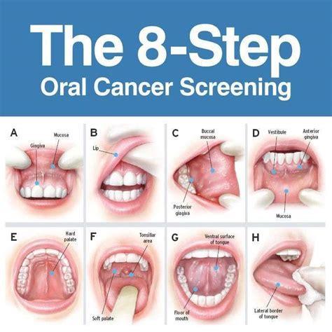 creams for lip cancer picture 17