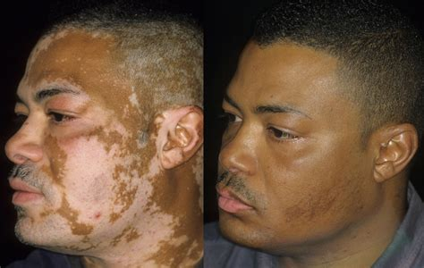 does ytacan plus lightens 's skin picture 9