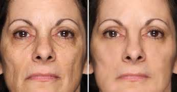 revitol scar cream after i finish micro needling on face picture 13