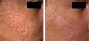 acne scar revision in encino picture 7