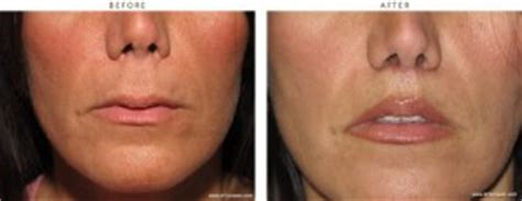 can a lip lift look natural picture 10