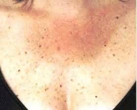 patches black spots armpits picture 1