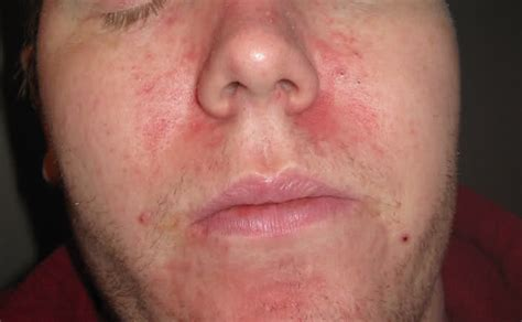 chapped skin picture 13