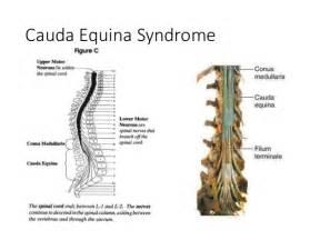 cauda equina bladder picture 3