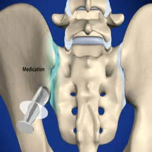 sacroiliac joint injections picture 15