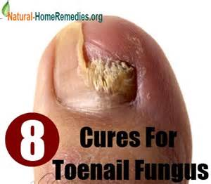 natural cure for toenail fungus picture 6