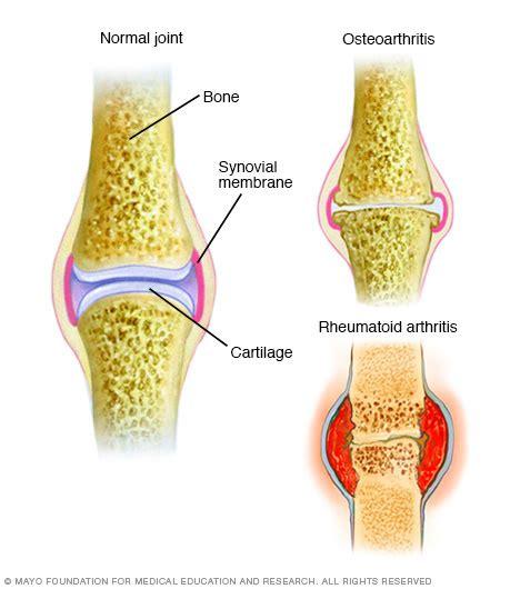 arthritis picture 15
