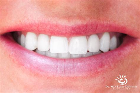 del mar teeth whitening picture 1