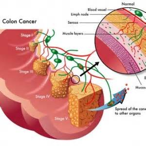 colon cancer experts picture 3