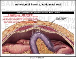 adhesions attached to colon picture 1