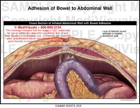 bowel obstruction after hysterectomy picture 5