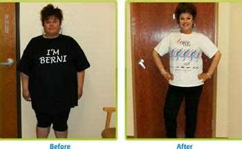 carolina weight loss surgery picture 1