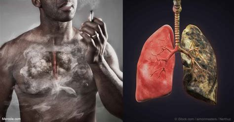 when you smoke what does your liver look like picture 3