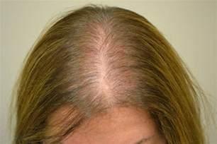alopecia picture 7